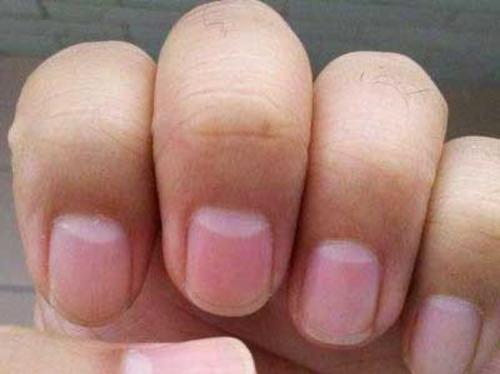 指甲半月痕健康晴雨表